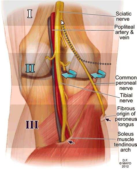 Combined common peroneal and tibial nerve injury after