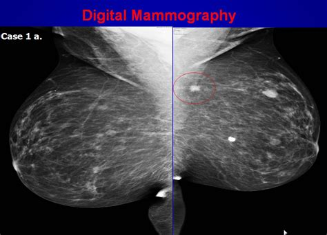 Digital Mammography | Diagnostic Mammography