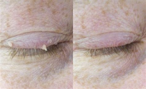 Skin Tag Removal From £195 - Leeds, Bradford and Harrogate